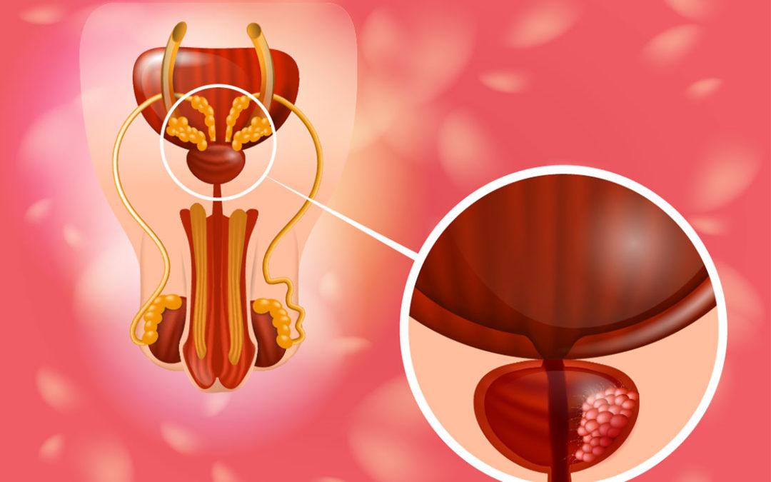 Urologie-Meiningen-Prostataprobleme-Harnblase